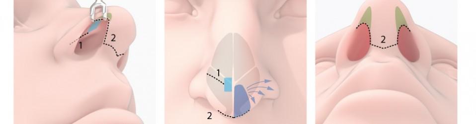 Nose surgery strategy comparison