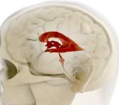 Hjärnans hålrum – ventriklarna